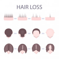 African Hair Transplant Treatment In London